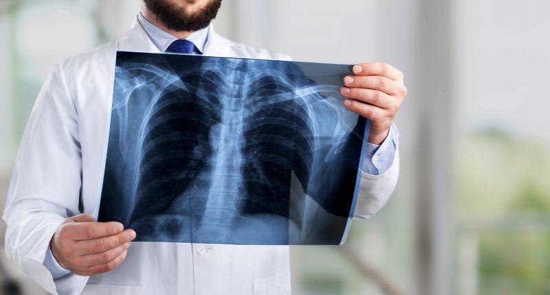 Dimerix raises $2.5M to help treat life threatening lung disease